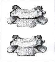 Description: Drawing of a normal cervical vertebra and one of the congenitally deformed vertebrae...